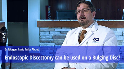 Endoscopic Discectomy can be used to treat Bulging Disc.