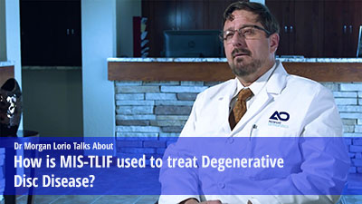 How is MIS-TLIF used to treat degenerative disc disease.