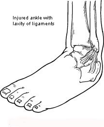 chronic ankle instability2