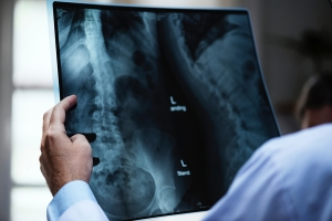 Spine surgery society makes recommendations for bone graft substitutes