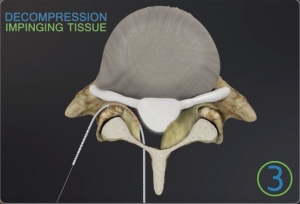 Decompression of Lumbar Spinal Stenosis Using iO-Flex® MBS Device