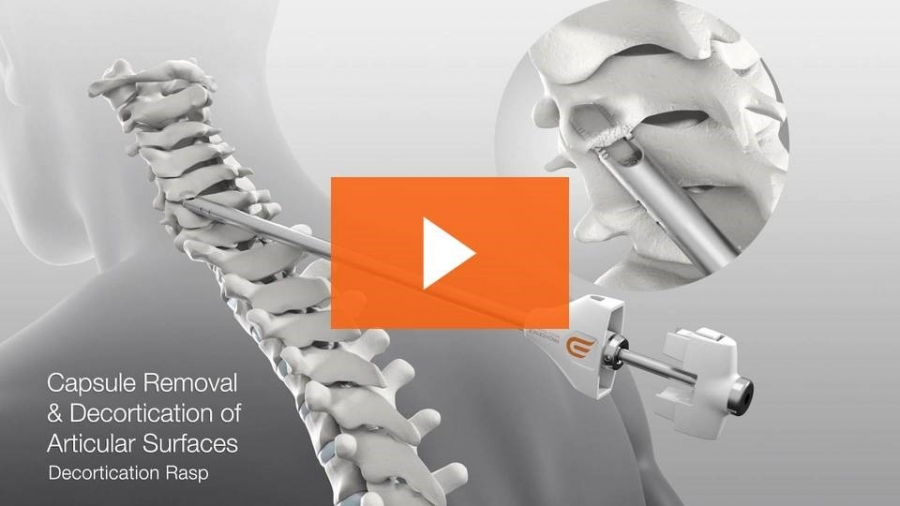 Patient Achieve Relief Minimally Invasive PCF Advanced Orthopedics